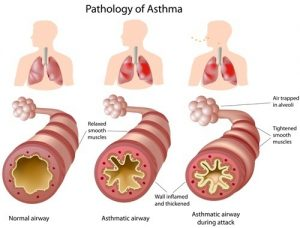 Asthma is narrowing of bronchi