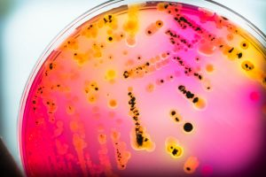 Bacterial growth in a Petri dish