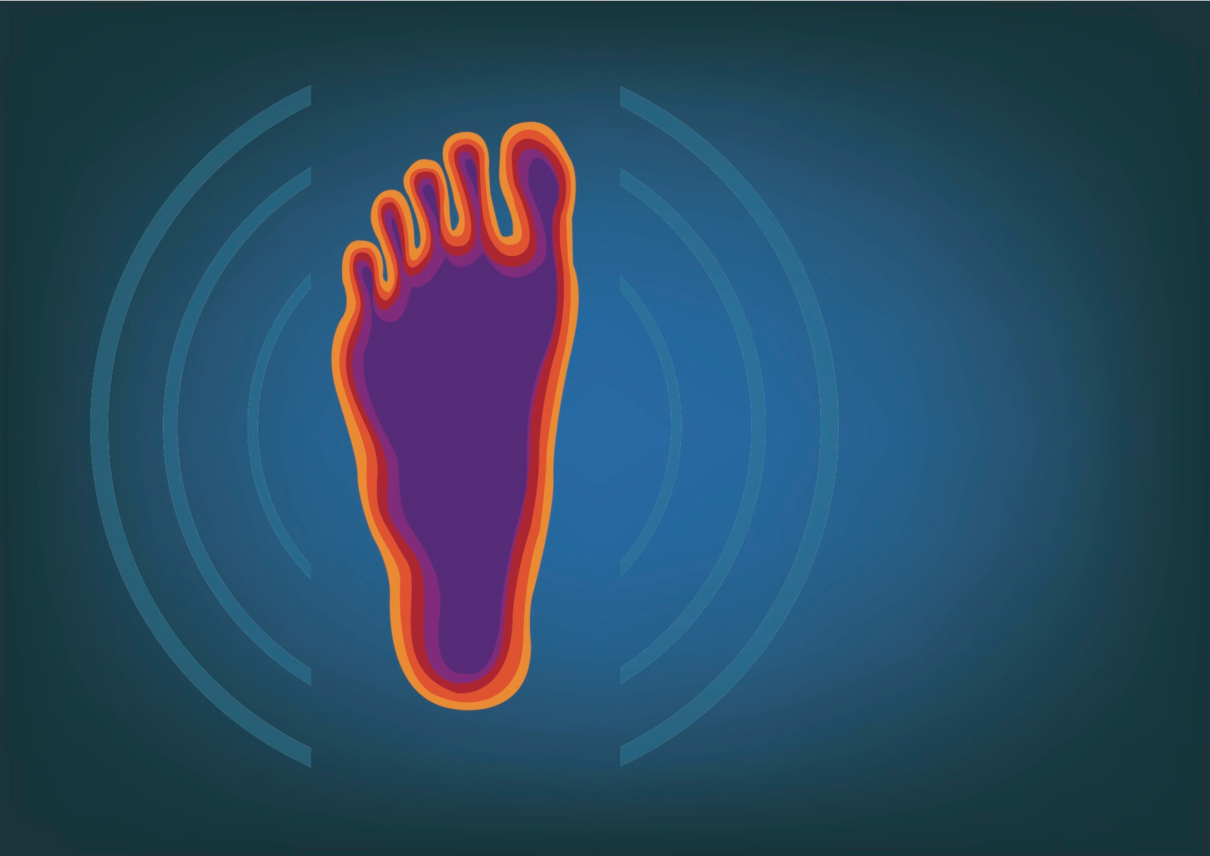 Plantar Fasciitis: Supports, Orthotics, or Walk on your Toes?