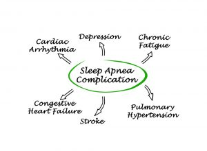 Sleep apnea is SERIOUS!