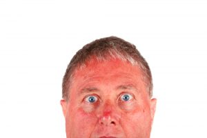Sunburn can be prevented and relieved!